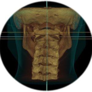 Upper-Cervical-CBCT-Manual